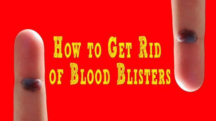 How to Get Rid of #Blood #Blisters |  #Get #Rid of Blood Blisters