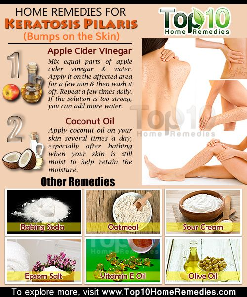 """Keratosis pilaris, also called """"chicken skin"""", is a common skin disorder characterized by small, acne-like bumps usually appearing on the upper arms, legs, buttocks or cheeks. These white or red bumps tend to be rough, dry, and at times, itchy. It is usually a benign condition that may improve or even disappear with age, generally by the age of 30."""