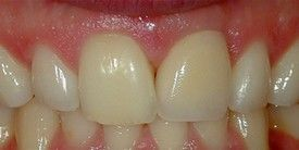 Porcelain Crowns -CEREC After: Smile and function restored with a Single Implant and an All Porcelain Crown (Cap) that fits securely over the implant.