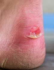 How to treat a Blister on heel