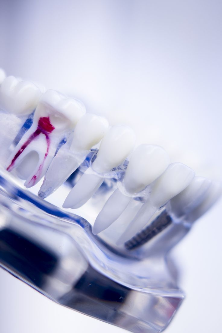 Know all facts about Root Canals and alternatives to Root Canals. #Root_Canal #DentalCare http://bit.ly/2j5fm6X