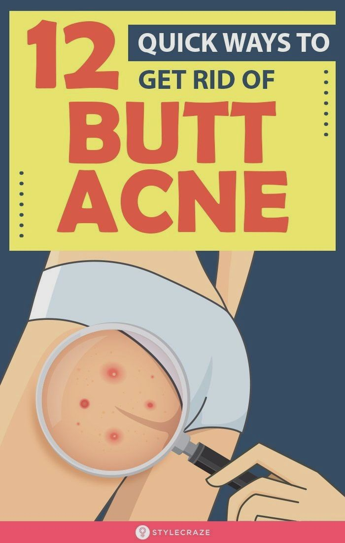 How To Get Rid Of Spots On Bum Fast