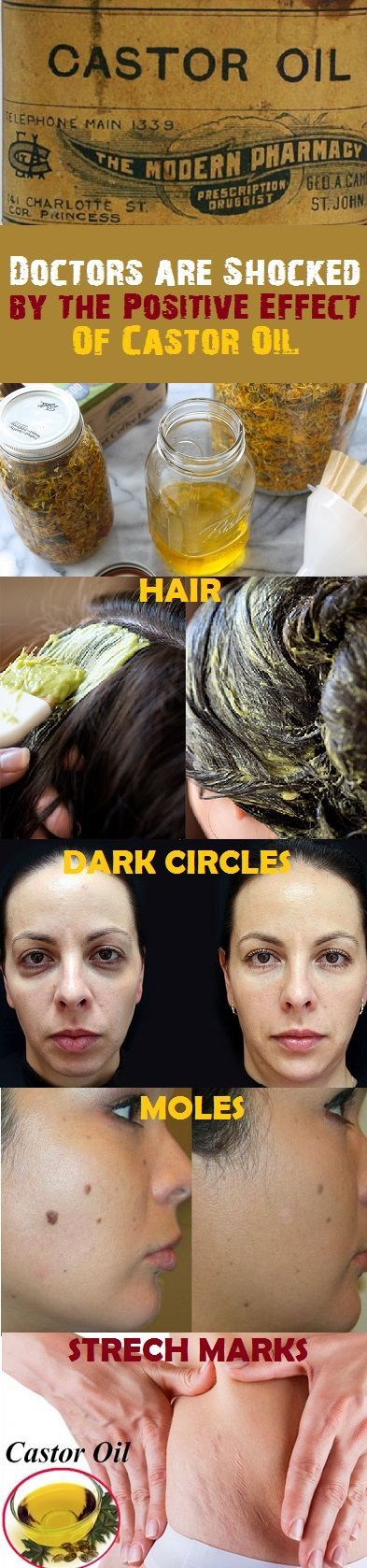 Doctors are Shocked by the Positive Effect of Castor Oil and Baking Soda! More than 20 Health Issues Can be Treated with This Incredible Combination!