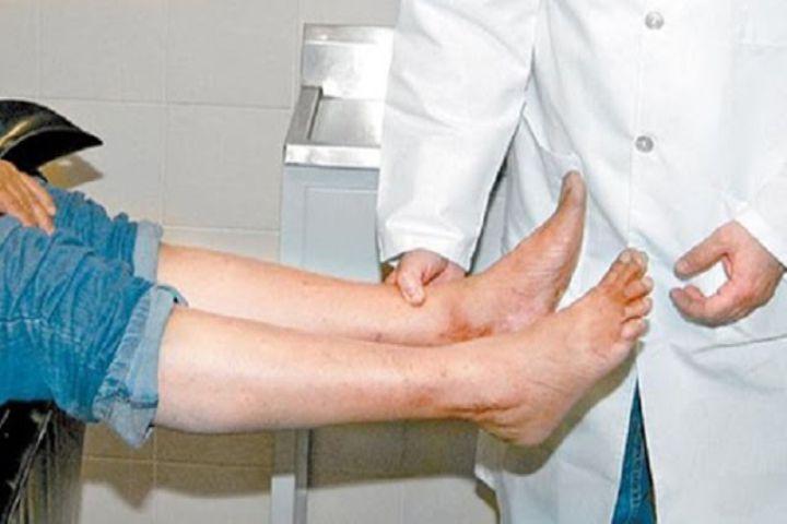 14 sinais importantes de que você tem má circulação no sangue! Veja…