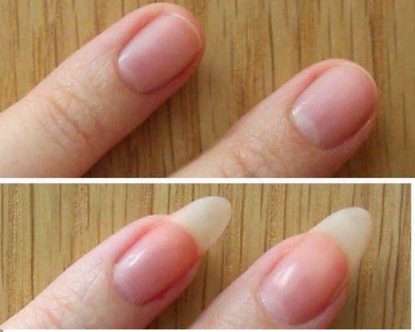 Koniec z łamliwymi i rozdwajającymi się paznokciami! Poznaj ten świetny i tani domowy sposób!