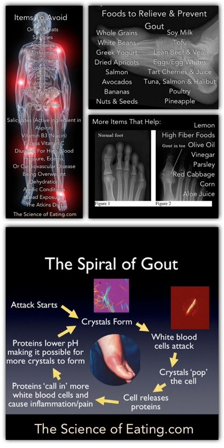 Foods To Help Prevent & Cure Gout