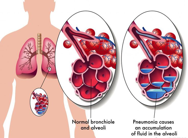Pneumonia Treatment if the symptoms are not severe, then there are options of natural treatment of pneumonia on hand. One of the best naturally and holistically means of treating pneumonia symptoms is utilising salt therapy.  #Pneumonia #Treatment #Salttherapy