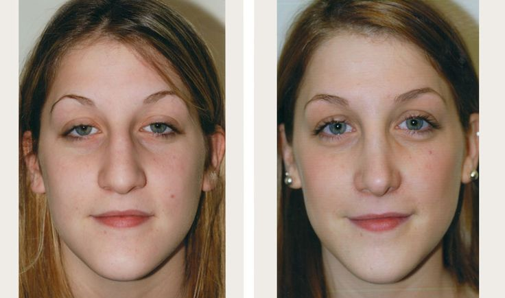Big Nose, Thick Skin. Nice Result, Fits The Shape Of Her