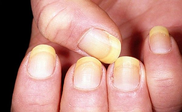 Yellow Nail Syndrome Symptoms........