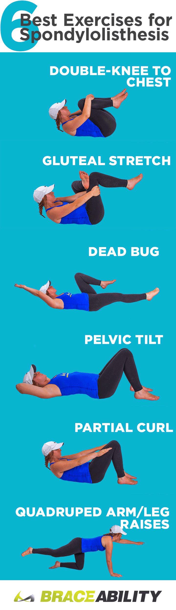 Exercises for spondylolithesis