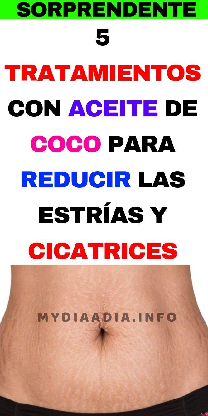 5 Tratamientos Con Aceite De Coco Para Reducir Las Estrias Y