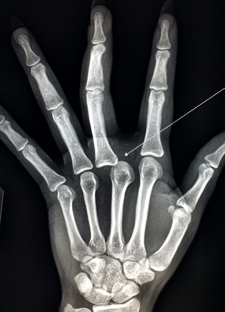 Xray Of  Hand Shows A  Dislocated  Finger   Radiology