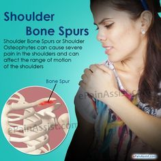 Shoulder Bone Spurs or Shoulder Osteophytes can cause severe pain and can affect the range of motion of the shoulders. Know its treatment, symptoms, causes.