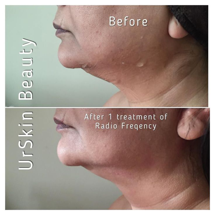 Book a course of 5 treatments for only 199.  Skin tightening with radio frequency - lower  face jowls and jaw line - special price for limits time only #facial #indian #richmond #brentford #hounslow #radiofrequency #urskinbeauty #skintightening