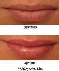 Affordable Lip Plumper - Visit http://www.pricecanvas.com/health/lip-plumper/ For Lip Plumper.