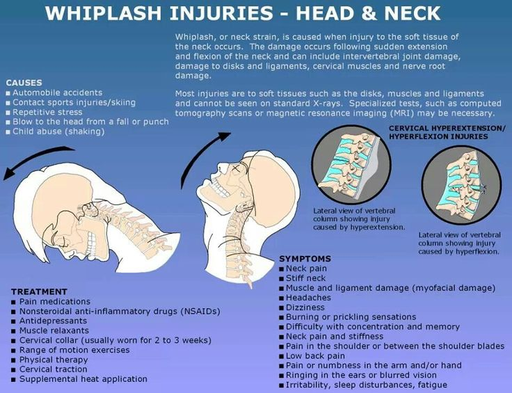 Best treatments for whiplash are NSAID, spinal manipulation and exercise. www.bentonchiropracticclinic.com