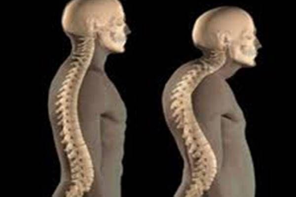 csontritkulás