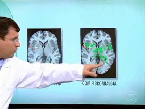 Fibromialgia - Exercícios diários para ajudar na dor - YouTube