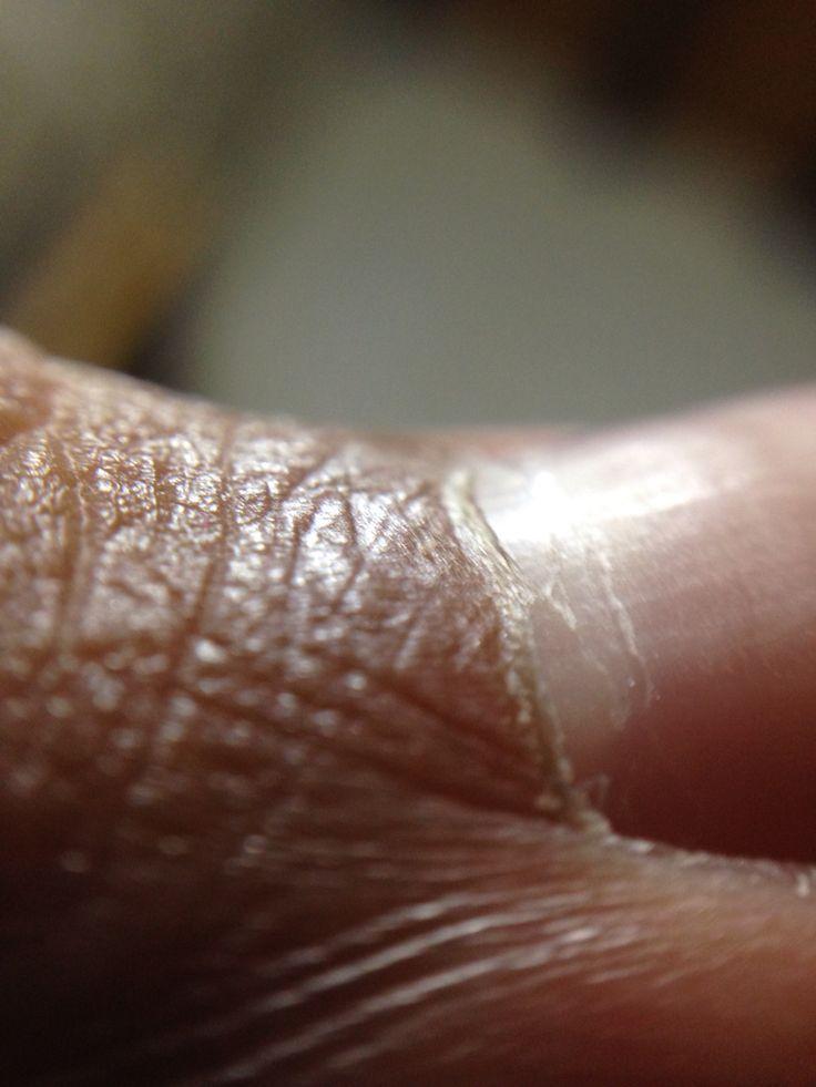 Textura Carnosa y Fibrosa