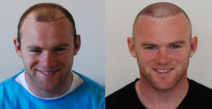 Wayne Rooney   Harley Street Hair Clinic