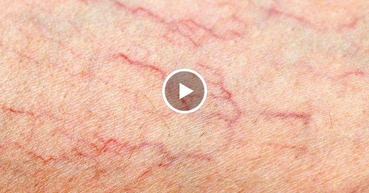 Самые читаемые статьи: Геморрагический васкулит лечение