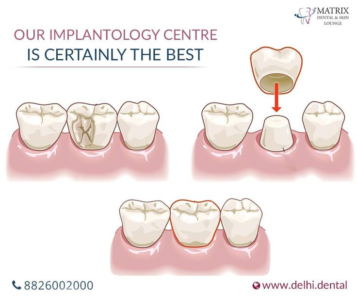 Best Implant Dentist Near Me: 8 Best Orthodontist In Trinidad West Indies Valsayn