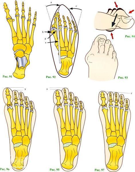 Ортопедическая обувь для широкой стопы для взрослых