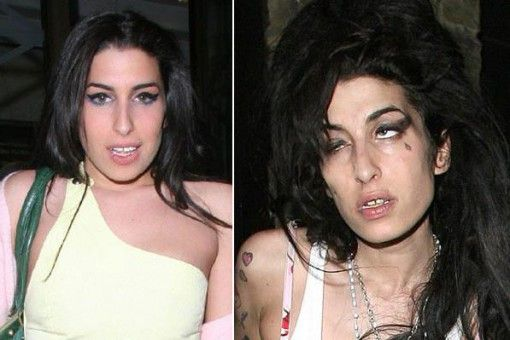Krokodil Drugs Before and After   Stars Before  amp  After Drugs    People Before And After Drugs