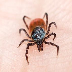 Tick Bites: Symptoms and Treatment