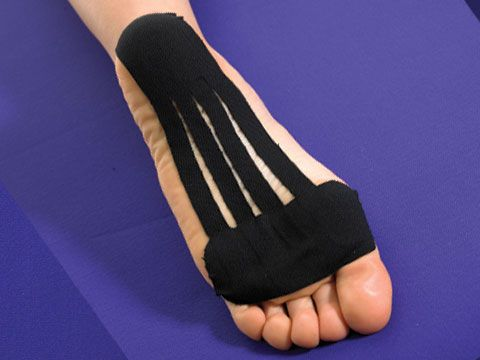 Plantar Fasciitis Treatment Using Kinesio Tape