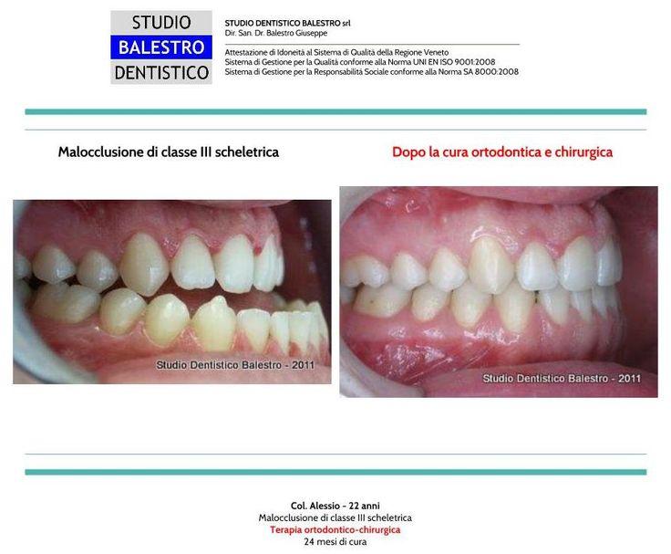 Casi clinici ortodontici Chirurgia Ortognatica di una malocclusione di classe 3 scheletrica http://www.studiodentisticobalestro.com/2016/05/chirurgia-ortognatica-malocclusione-di.html