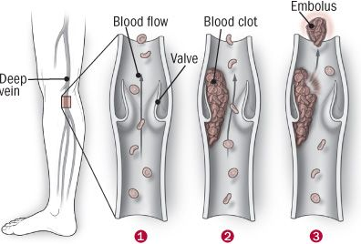 17 best images about blood clot information on pinterest