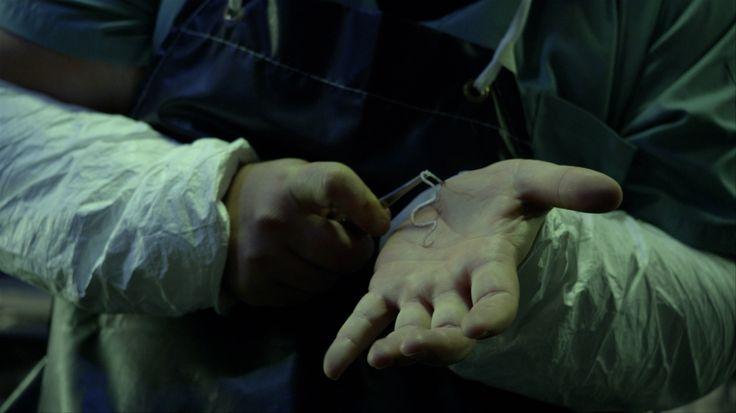 Tienes un gusano en la mano! Quitatelo! Rápido!