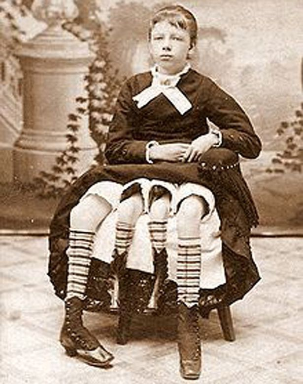 article // Bodyshocked: Elephant Man Joseph Merrick and other 'vintage circus freaks'