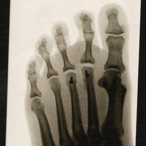 Warum habe ich ständig Fußschmerzen? Annette Meier