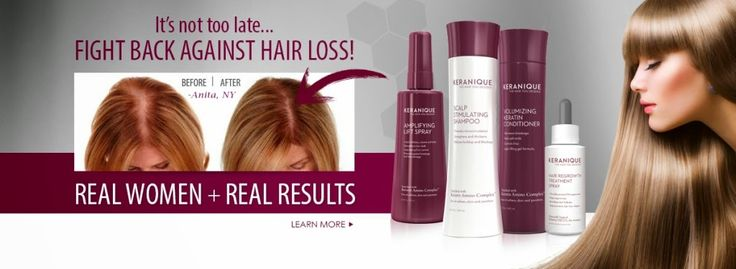 Try Using Hair Regrowth Products From Leading Brands To Fight Hair Loss  Women today can start using specially formulated #hairregrowthproducts from leading #haircare brands and not have to suffer in silence from the rather disturbing trends of thinning #hair and rampant hair loss. read more.. http://iskeraniquescamreal.blogspot.com/2015/03/try-using-hair-regrowth-products-from.html