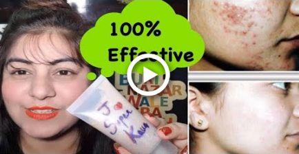 So entfernen Sie Pickel – DIY Neem Face Wash   Teenage Hautpflege   Pickel Abhilfe   Jsuper – Hairstyles & Nails // DIY ♥