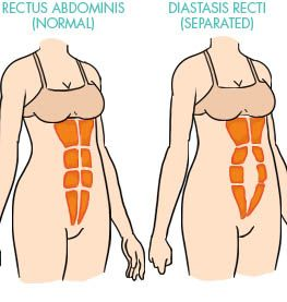 Diastasis Recti Abdominal Separation --- turns out that ALL the workout I have been doing are BAD! Which explains why my abs get worse and not flat.