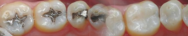 Most people need at least one dental filling in their lifetime. Fillings are most commonly used to treat cavities. They're also used to repair cracked or broken teeth, or teeth that have been worn down over time.