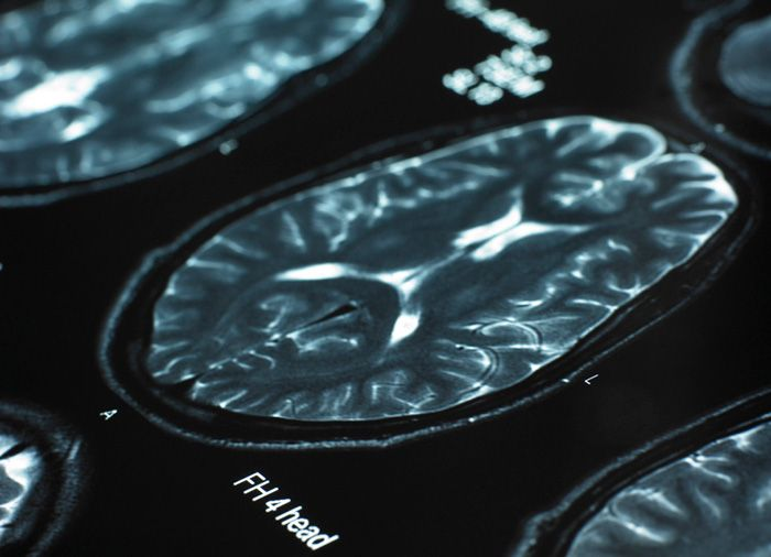 Core dementia treatment technology patented at 6 European countries, concurrently