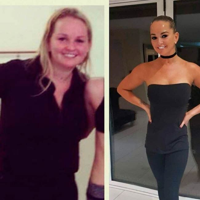 Jennifer Ellison before and after pics...