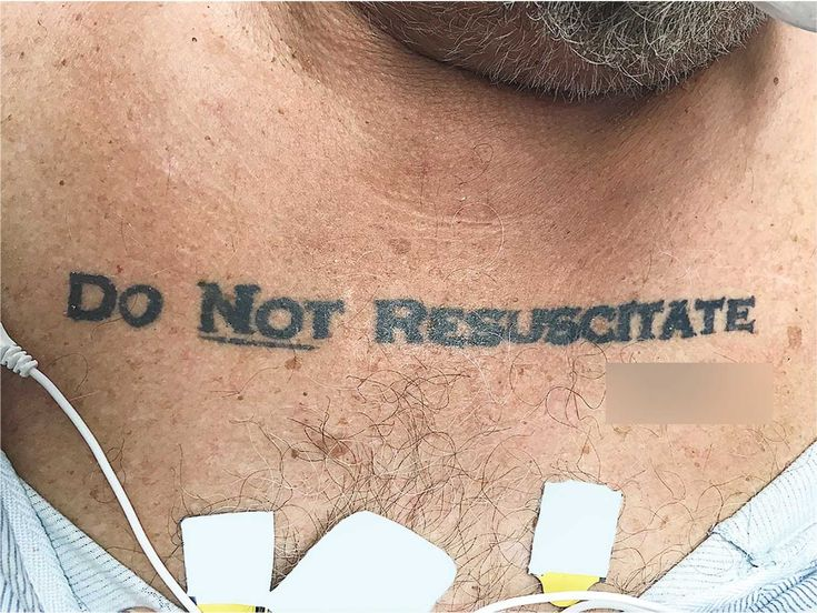 The 70-year-old's DNR tattoo left doctors grappling with ethical and legal questions. The patient died the next day at Miami's Jackson Memorial Hospital.