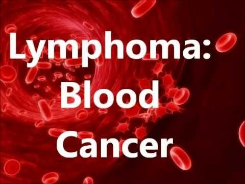 Lymphoma is a type of blood cancer and affects lymphatic system. Lymphatic system or Lymph system is a part of the immune system responsible for fighting diseases and filtering out bacteria. In Lymphoma, lymph nodes of patients swell.