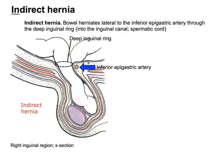 inguinal hernia the british hernia centre - 735×537