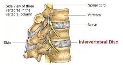 intervertebral disc,tulang rawan,tulang tumbuh tinggi, tulang punggung, tulang punggung tumbuh tinggi