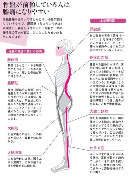 骨盤前傾型