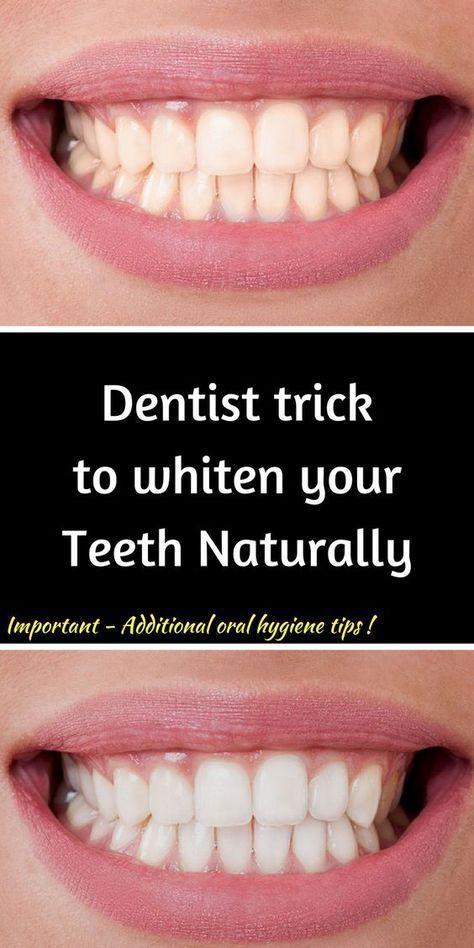 Whitening Teeth Whitening Teeth In One Day Whitening Teeth In