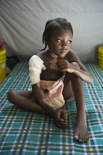 A young injured girl in a makeshift Doctors Without Borders clinic in Leogane, Haiti.