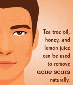 how to clear face acne fast