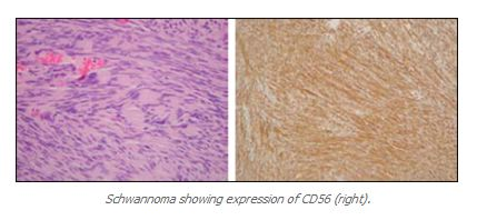 Schwannoma showing expression of CD56 (right). - http://www.propath.com/companies/press-clippings/26-newsletters/297-cd56-ncam-august-2001